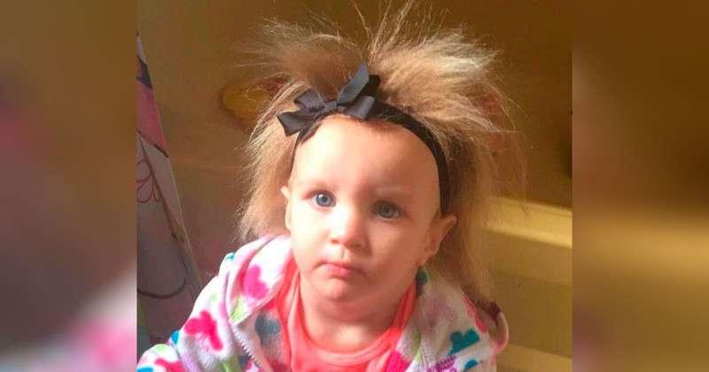 Малышке нельзя расчёсывать волосы из-за редкого заболевания, но ей это нравится (10 фото)