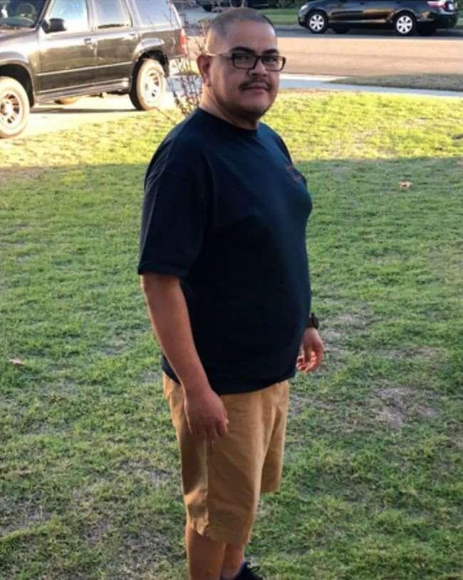 Пивной живот у мужика оказался раковой опухолью весом 35 кг (3 фото)