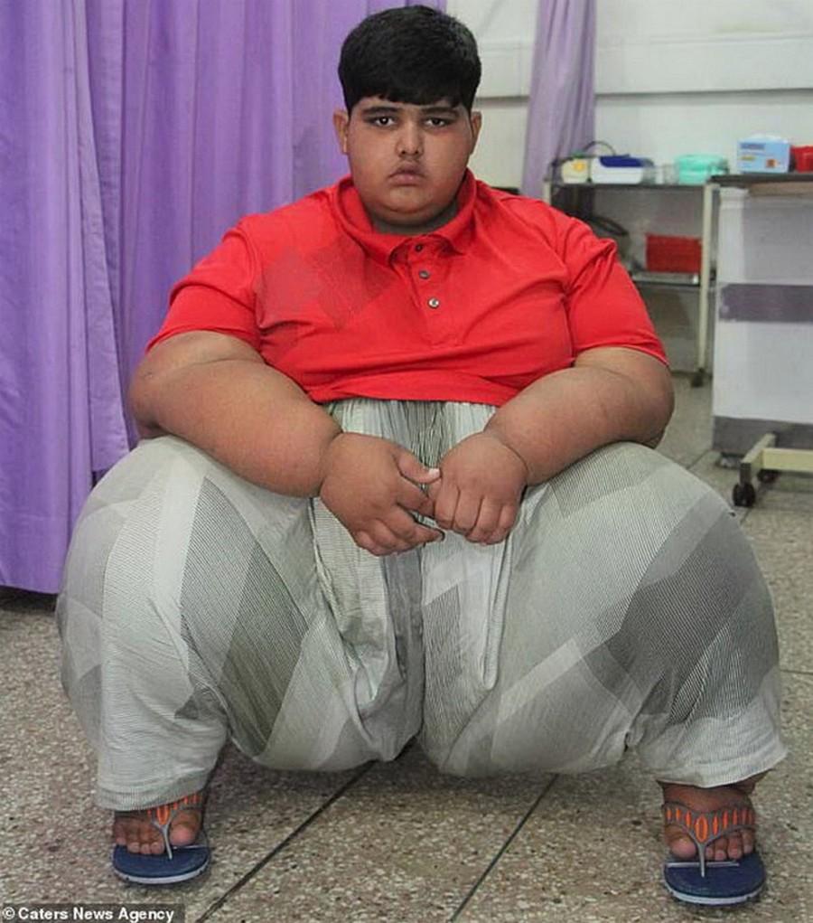 Пакистанец Мохаммед Арбрар самый тяжелый ребенок планеты