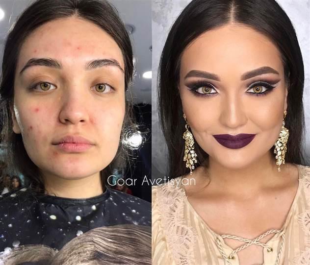Макияж меняет девушек с самой проблемной кожей до неузнаваемости ( 25 фото )