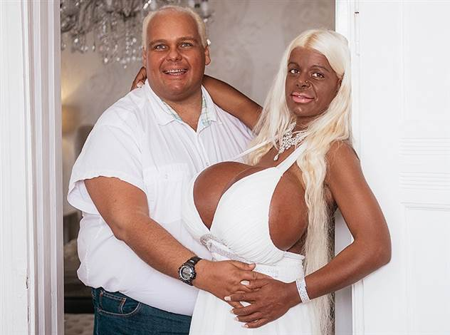 Как выглядят мужья женщин, помешанных на пластических операциях ( 7 фото )
