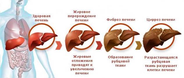 Язва, изжога, регулярный стул: 9 мифов о желудке и пищеварении ( 9 фото )