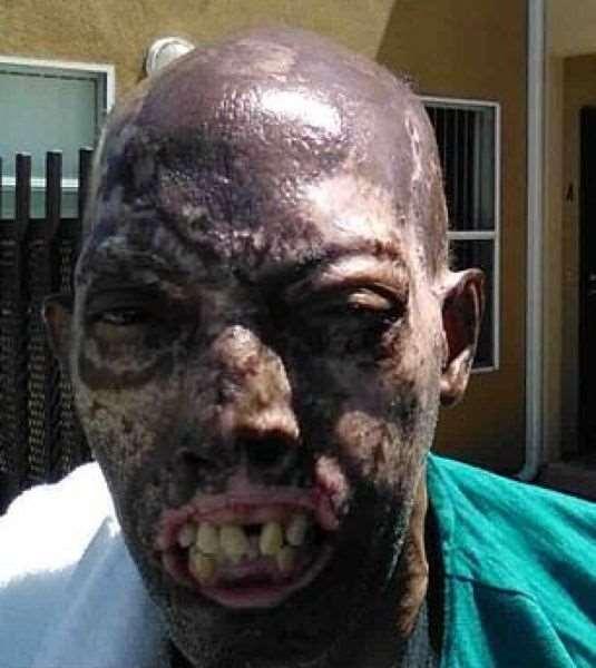 Первая в мире пересадка лица темнокожему пациенту прошла успешно ❘ фото