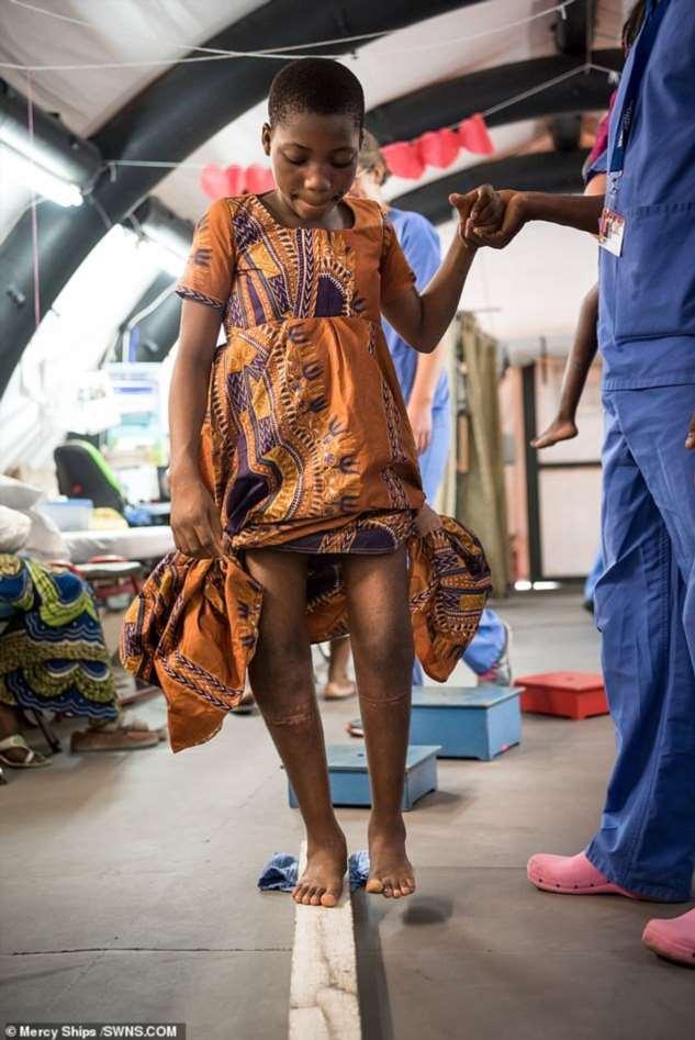 Хирурги преобразили девочку с жутко искривленными ногами кавалериста ❘ фото